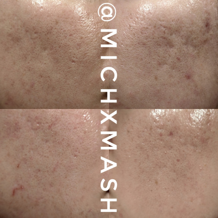 michxmash-before-afters-2